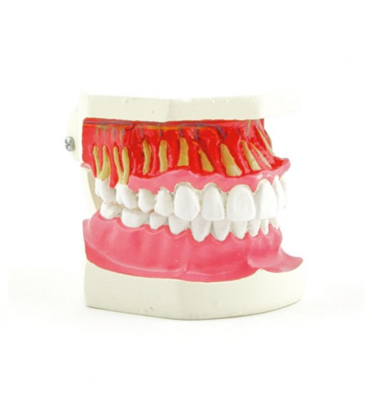 modele-dentition